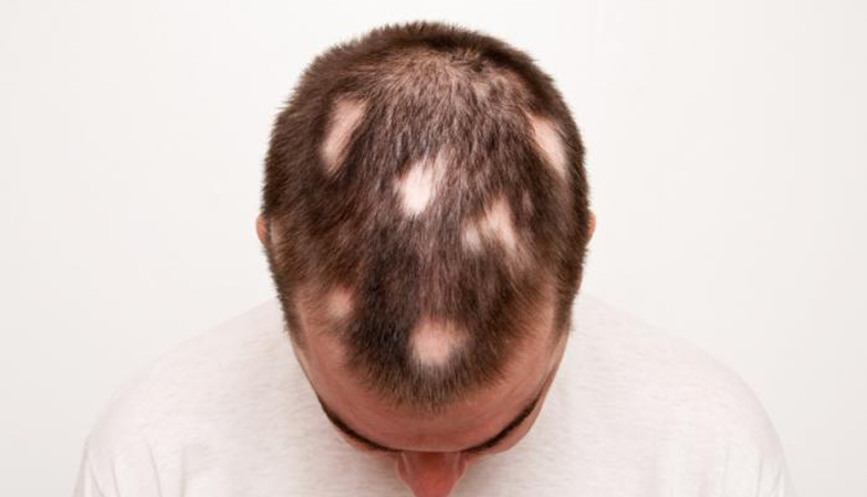 Circular Patches of Bald Spots