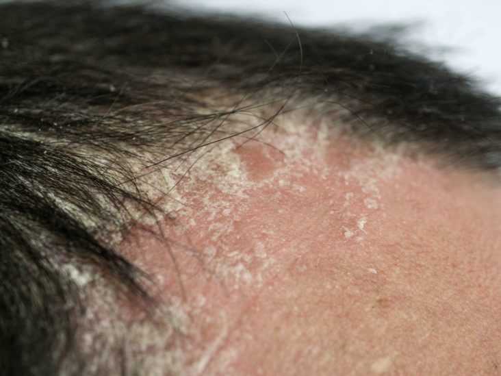 dryness on scalp due to damaged hair follicles