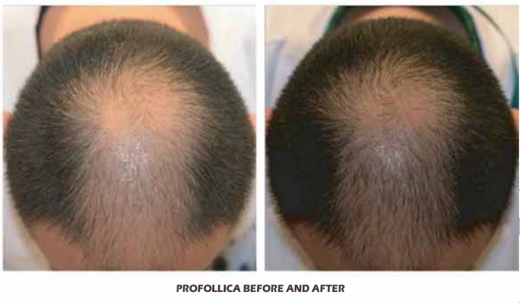 Profollica before and After